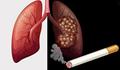 Ảnh hưởng của việc sử dụng thuốc lá đối với sức khỏe