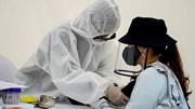 6 mẫu nghi Covid-19 qua xét nghiệm nhanh 2 ngày qua ở Hà Nội đều âm tính