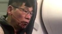 United Airlines mất tỉ đô, nạn nhân gốc Việt thành triệu phú nếu thắng kiện
