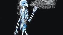 Thuốc lá làm tăng nguy cơ mắc các bệnh xương khớp
