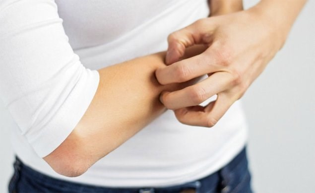 Năm loại thực phẩm có tác dụng dưỡng da, trị ngứa trong mùa Đông